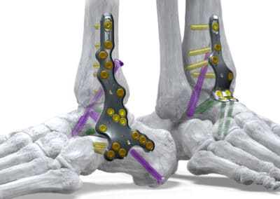 The Silverback™ Ankle Fusion Plating System is now available in Switzerland